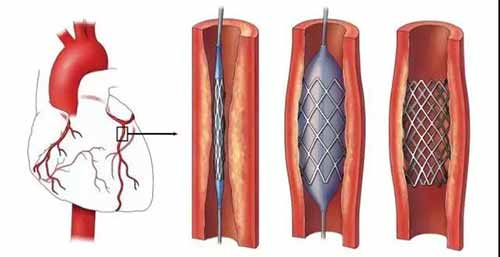 coronary stents assembly